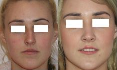 Rhinoplasty (Nose Job) - Photo before - Prof. dr hab.  Piotr Wójcicki