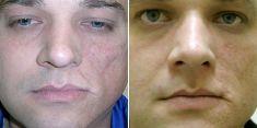 Lip augmentation - cheiloplasty - Photo before - Brandeis Clinic by Lucie Kalinová