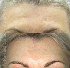 Forehead lift  (Brow lift) - Photo before - MUDr. Roman Kufa - Perfect Clinic