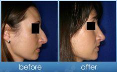 Rhinoplasty (Nose Job) - Photo before - Dr. Steve Merten