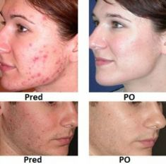 Laser acne treatment - Photo before - Eveclinic Bratislava