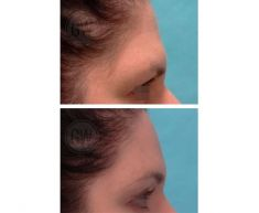 Brow lift - Photo before - Dr. Guy Watts
