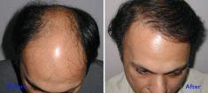 Hair Transplant - Photo before - Azim Jahangir Khan M.D.
