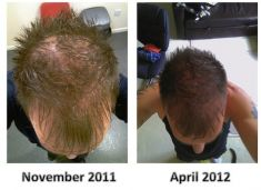 Hair Transplant - Photo before - ClinicForYou