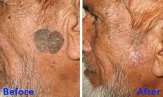 Laser acne treatment - Photo before - Azim Jahangir Khan M.D.