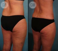 Liposuction - Photo before - Dr. Guy Watts