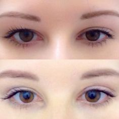 Eyelid surgery (Blepharoplasty) - Photo before - ClinicForYou