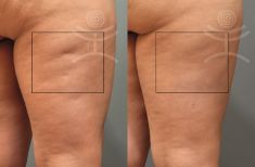 Treatment of cellulite - Photo before - Mediestetik, skupina klinik