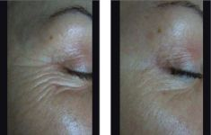 Radiofrequency Rejuvenation (Aluma, accent, TriPollar, Spa RF device, Re-Age) - Photo before - YES VISAGE Aesthetic medicine and plastic surgery clinic