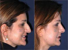 Rhinoplasty (Nose Job) - Photo before - Prof. Pietro Palma MD, FACS
