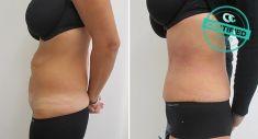Abdominoplasty (Tummy Tucks) - Photo before - Brandeis Clinic by Lucie Kalinová