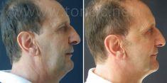 Liposuction - Photo before - Poliklinika za estetsku kirurgiju Dr. Tončić