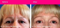 Cosmetic Surgery for Women - Photo before - Cosmetic Surgery for Women