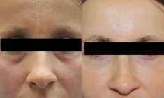 Hyaluronic acid-based wrinkle fillers - Photo before - ARS ESTETICA – Klinika Medycyny Estetycznej i Laseroterapii