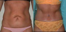 Abdominoplasty (Tummy Tucks) - Photo before - Be Clinic