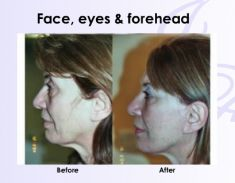 Facelift - Photo before - Harley street plastic surgery