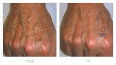 Tattoo removal - Photo before - YES VISAGE Aesthetic medicine and plastic surgery clinic