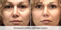 Fat (lipofiling) - Photo before - Brandeis Clinic by Lucie Kalinová