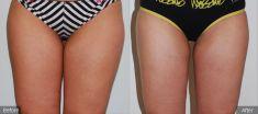Liposuction - Photo before - BareAesthetics Cosmetic Surgery Clinics