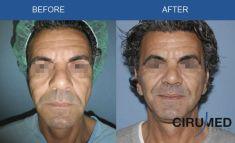 Dr. Alexander Amir Aslani - Photo before - Dr. Alexander Amir Aslani