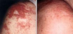 Spider veins laser removal (redness, birh marks) - Photo before