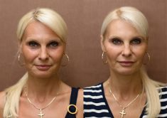 Liquid facelift - Photo before - Perfect Clinic - centrum estetické medicíny