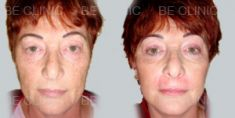 Be Clinic - Photo before - Be Clinic