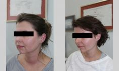 The facial implants surgery - Photo before - ARS ESTETICA – Klinika Medycyny Estetycznej i Laseroterapii
