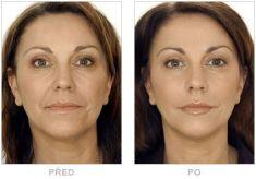 Hyaluronic acid-based wrinkle fillers - Photo before