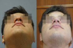 Dr. Szczyt Plastic Surgery Clinic - Photo before - Dr. Szczyt Plastic Surgery Clinic