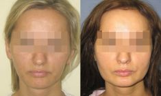 The facial implants surgery - Photo before