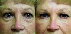 Hyaluronic acid-based wrinkle fillers - Photo before - Mediestetik, skupina klinik