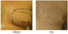 SlimLipo Laser Liposuction - Photo before