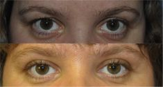 Eyelid surgery (Blepharoplasty) - Photo before - Mr. Marc Pacifico M.D.