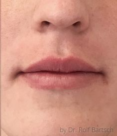Lip Lift - Photo before
