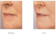 Hyaluronic acid-based wrinkle fillers - Photo before - YES VISAGE Aesthetic medicine and plastic surgery clinic
