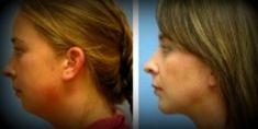 Ultrasonic liposuction - Photo before - Mandala Beauty Clinic