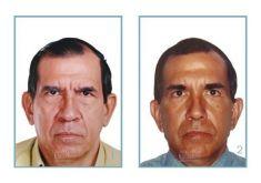 Dr. Julio César Escobar Fonseca - Photo before - Dr. Julio César Escobar Fonseca