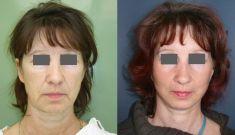 Forehead lift  (Brow lift) - Photo before - MUDr. Karel Urban