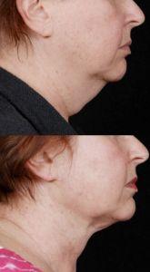Laser Liposuction - Photo before - MUDr. Jiří Paděra - Perfect Clinic