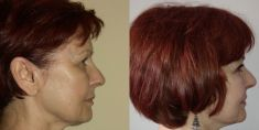 Facelift - Photo before - ClinicForYou