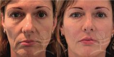 Liquid facelift - Photo before - Mediestetik, skupina klinik