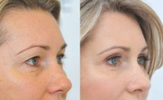 YES VISAGE Aesthetic medicine and plastic surgery clinic - Photo before - YES VISAGE Aesthetic medicine and plastic surgery clinic