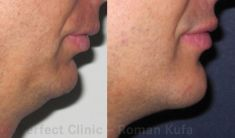 Chin Surgery - Photo before - MUDr. Roman Kufa - Perfect Clinic