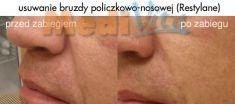 Hyaluronic acid-based wrinkle fillers - Photo before - lek. med. Jacek Ściborowicz - MediVita