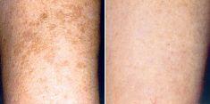 Tattoo removal - Photo before - Brandeis Clinic by Lucie Kalinová