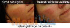 Spider veins laser removal (redness, birh marks) - Photo before - lek. med. Jacek Ściborowicz - MediVita