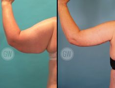 Arm Lift Surgery - Photo before - Dr. Guy Watts