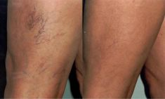 Varicose veins laser treatment - Photo before - YES VISAGE Aesthetic medicine and plastic surgery clinic