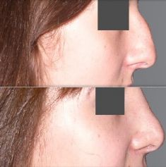 Rhinoplasty (Nose Job) - Photo before - ClinicForYou